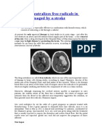 Uric Acid Neutralizes Free Radicals in Brain Damaged by a Stroke
