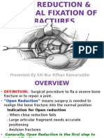 Open Reduction Internal Fixation Rif