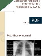 Gambaran Radiologi Thorax