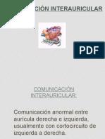 Comunicacion Interauricular (CIA)