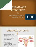 embarazoectopico-100519144713-phpapp02