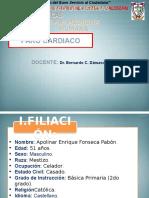 INFARTO CARDIACO
