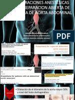 Consideraciones Anestesicas en Aneurisma de Aorta
