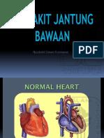 penyakit jantung bawaan