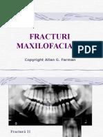 LP Fracturi Maxilofaciale2
