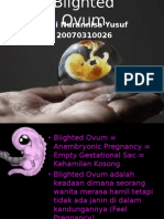Blighted Ovum