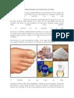 5 Remedios Casros Para Eliminar Los Hongos de Las Uñas