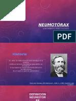 Clase Neumotorax