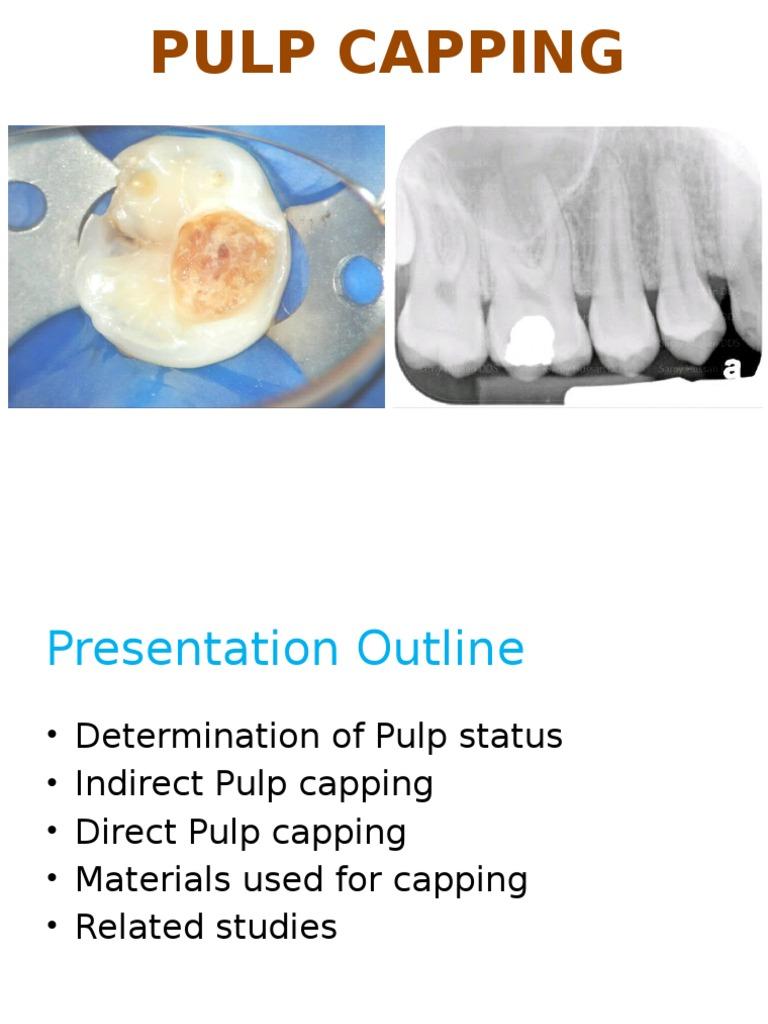 indirect pulp cap