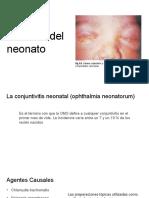 Oftalmia Del Neonato