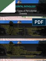 4 Gingivitis Classification Etiology Pathogenesis