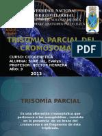 Trisomia parcial del cromosoma 15.pptx