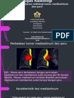 tugas radiologi perbedaan tumor mediastinum dan paru.pptx