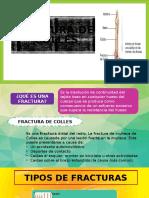Fractura de Colles Caso Clinico