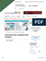 FRACTURA Diafisiaria Del Humero-efisioterapia.net