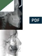 Cefalometrias