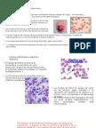 Anemia Sideroblastica. Ppt