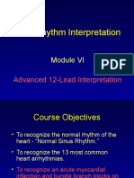 Module_6.Advance 12 Lead Interpretation.ppt