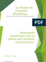 Neuropathie Périphérique