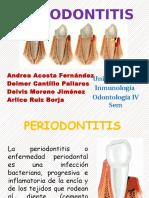 PERIODONTITIS,,,,