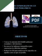 Tc Torax Pediatria