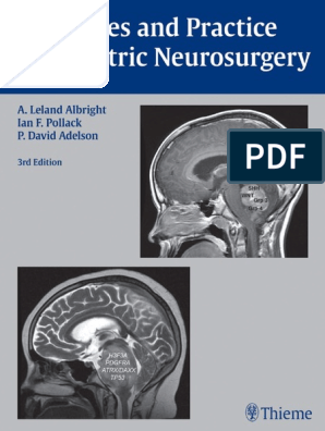 Principles and Practice of Pediatric Neurosurgery, 3E (2014