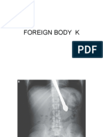 Foreign Body k