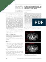 En Bloc Pancreaticoduodenectomy and Colectomy - Zhao2015