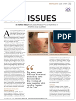 Treatment of Acne Scars With Radiesse