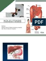 tugas kolelitiasis