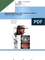 Oligometastatização extracraneana no NSCLC