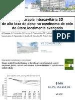 Braquiterapia intracavitária 3D de alta taxa de dose no carcinoma de colo do útero localmente avançado