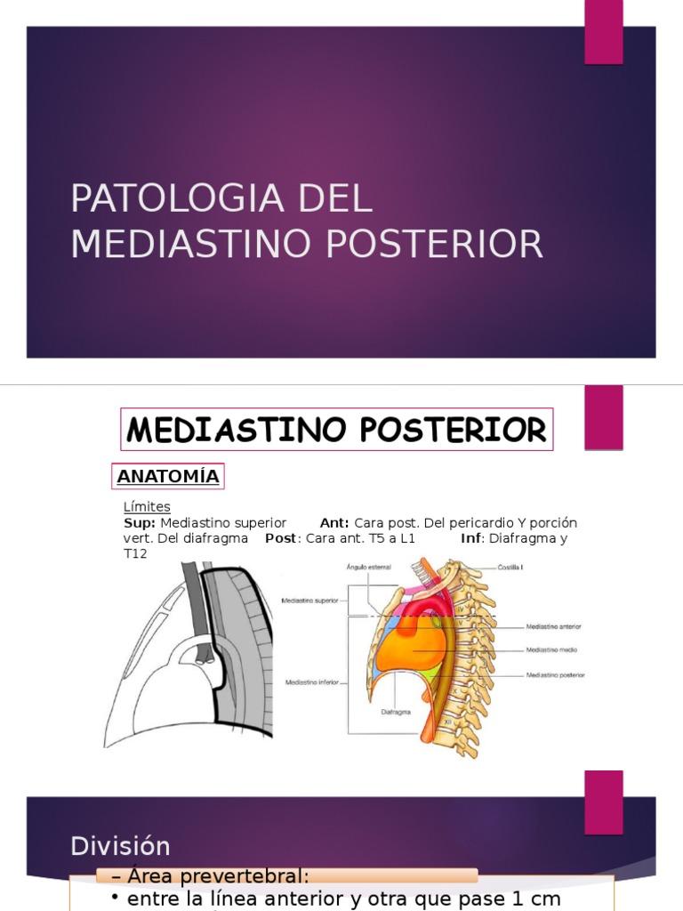 Patologia Del Mediastino Posterior