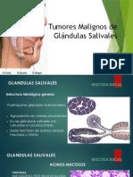 Tumores Malignos de Glandulas Salivales Mod