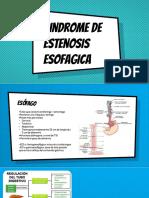 estenosis esofagica