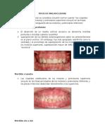 Tipos de Malaoclusión