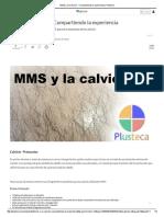 MMS y La Calvicie - Compartiendo La Experiencia _ Plusteca