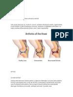 Diferența Dintre Artroză Și Artrită