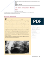 Caso clínico.  Una mujer de 68 años con dolor dorsal de reciente inicio.pdf