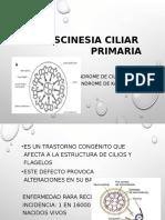 Discinesia Ciliar