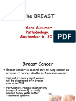 Breast Cancer Sukumar