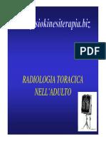 polmonite virale