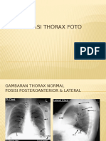 225735726-Interpretasi-Thorax-Foto.pptx