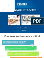 Neurinoma Del Acustico....
