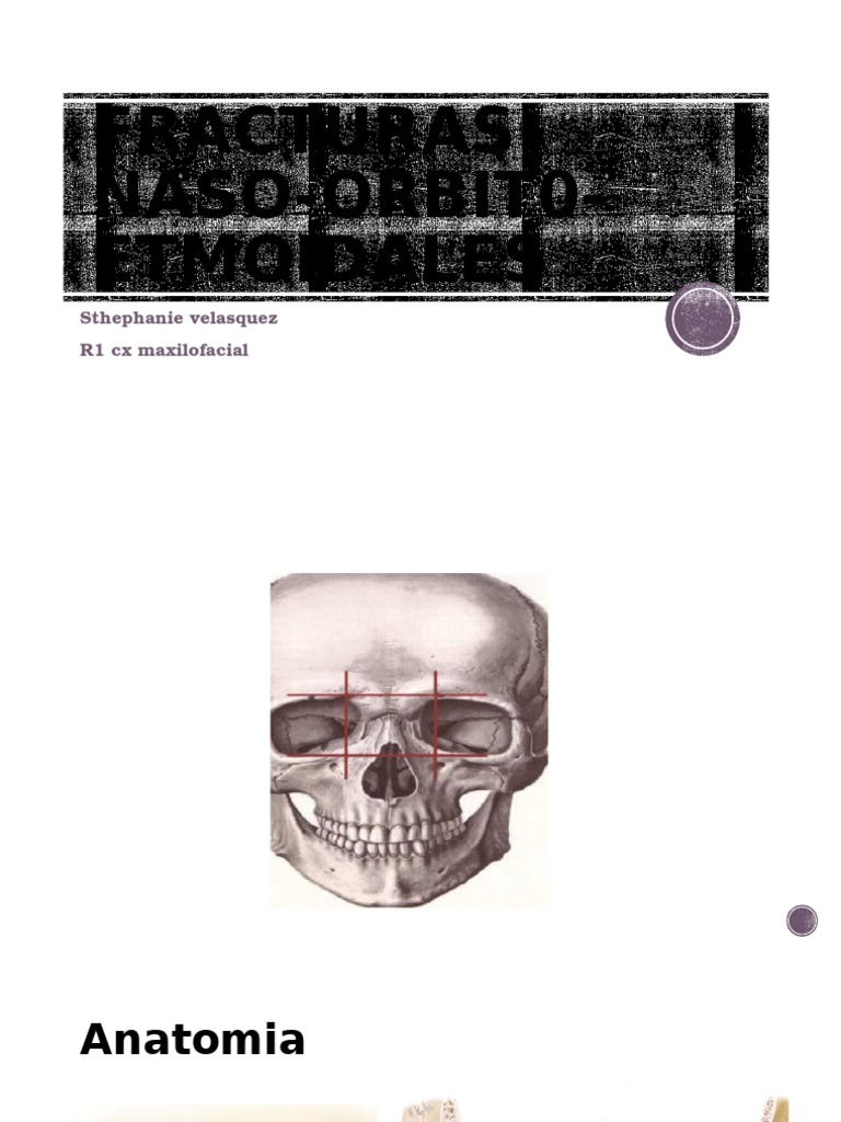 Fracturas Naso Orbit0 Etmoidales