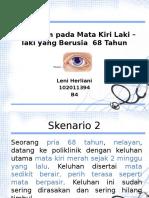 Blok 23 Pterigium