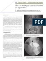 Kinking of the Lower Ureter