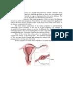 Ectopic Pregnancy_CS