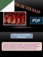 tiposdecolgajo-130307200118-phpapp01.pptx