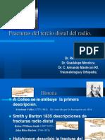 FracturasdelTercioDistaldelRadio.pdf